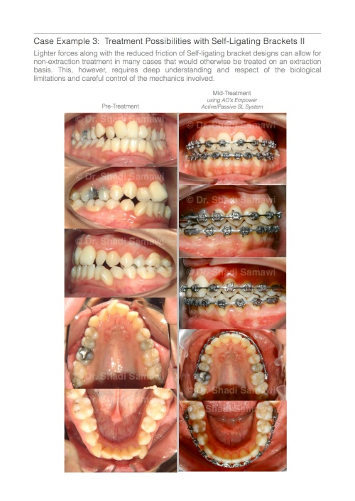 """A page excerpt from my latest ebook """" Straight Wire Orthodontics: A Practical Guide to Principles & Technique"""""""