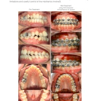 A Call for Productive Simplicity in Orthodontics