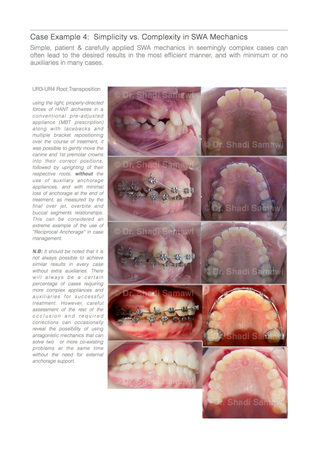"A page excerpt from my latest ebook "" Straight Wire Orthodontics: A Practical Guide to Principles & Technique"""