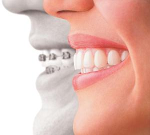 Thoughts on Orthodontic Treatment with Clear Aligners