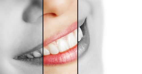 The 3 Pillars of Orthodontic Passive Self-ligation