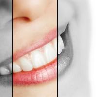 The 3 Pillars of Orthodontic Passive Self-ligation
