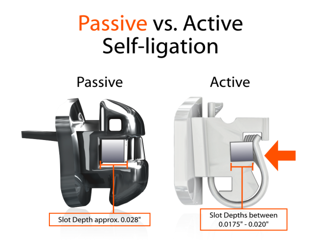 PSL vs ASL Locking Mechanisms.