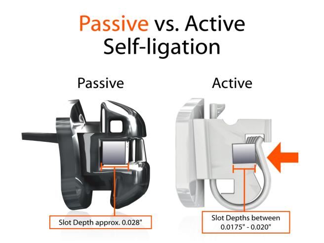 PSL vs ASL Locking Mechanisms.