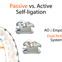 Active versus Passive Self-Ligation? : Control versus Low-Friciton?