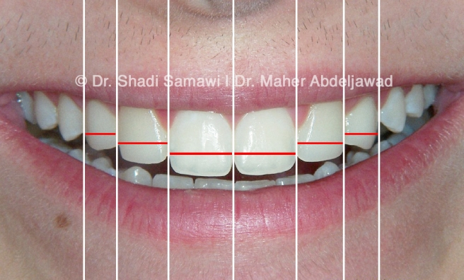 """Final orthodontic tooth positioning and restorative results were planned and executed to produce an esthetic smile line and tooth proportions that followed the """"Golden Proportion"""" as close as possible."""