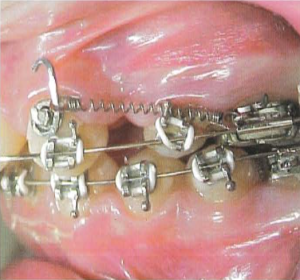 "With efficient sliding mechanics techniques using rectangular archwires, simpler and more efficient space closure can be achieved without the unnecessary ""over-complication"" of a ""make-shift"" Power Arm onto the upper canines, with the associated bulk, reduced oral hygiene and possible trauma."