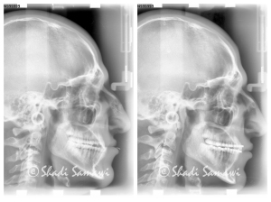 Pre and Post-treatment comparison of cephalometric views.
