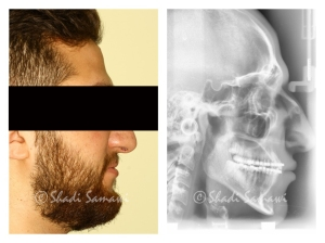 Post-treatment profile and lateral cephalometric views.