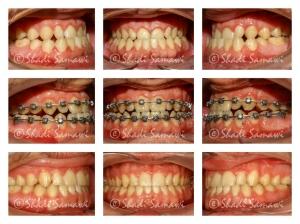 Pre-treatment, progress and final result.