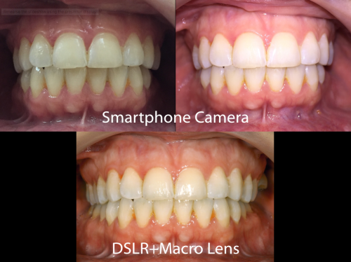 Mobile Phone and DSLR Intraoral comparisons