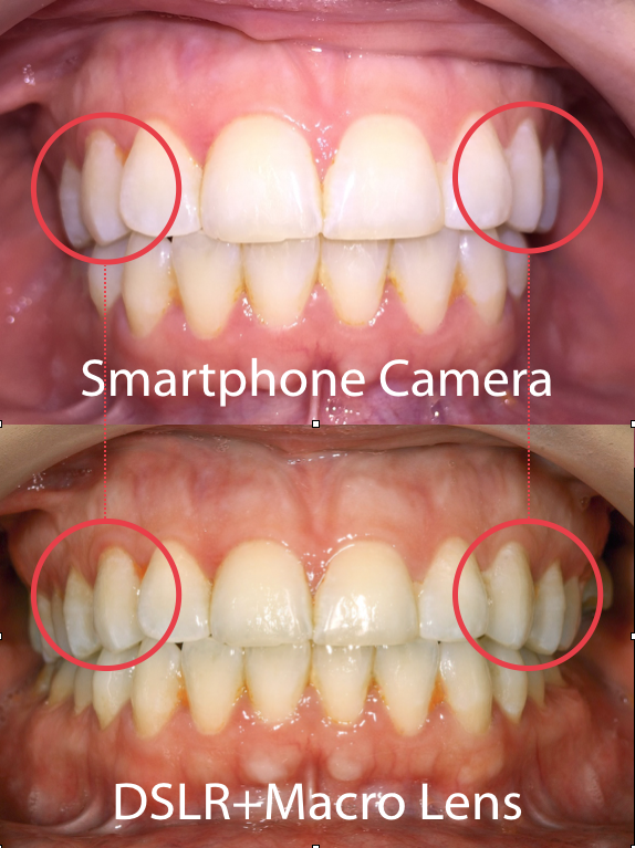 Difference in Tooth Dimensions